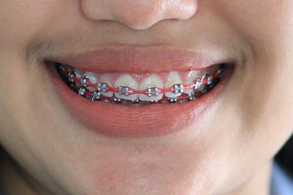 traditional-dental-braces