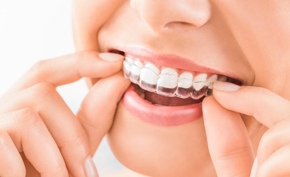 wearing-invisalign-braces