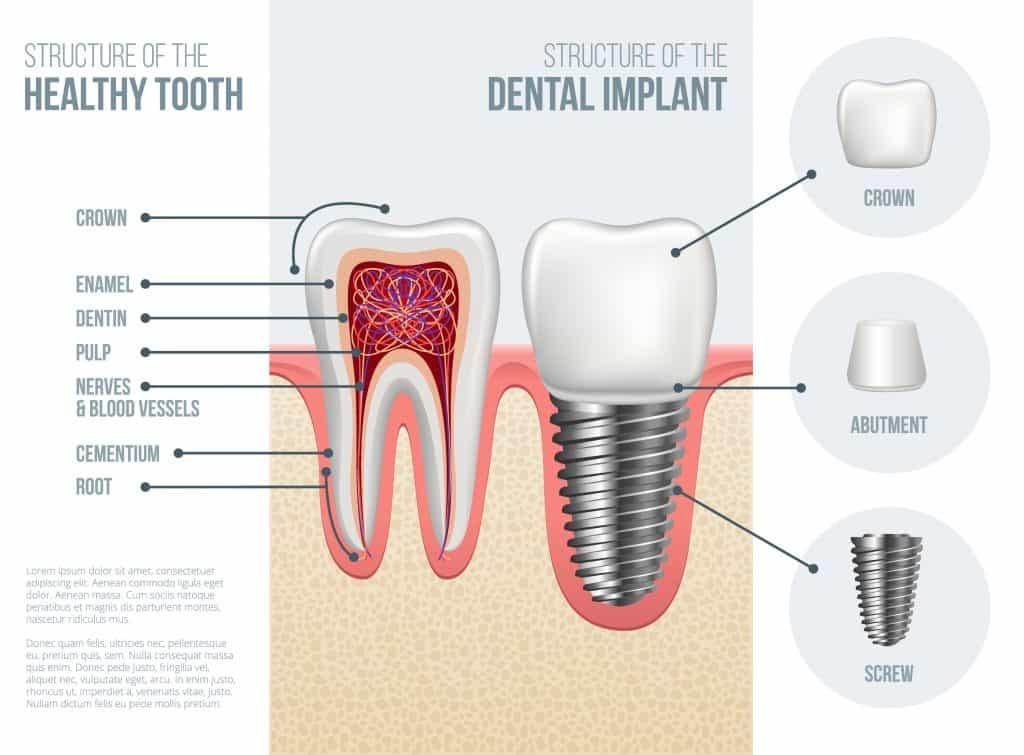 dental-implant-fitting-procedure