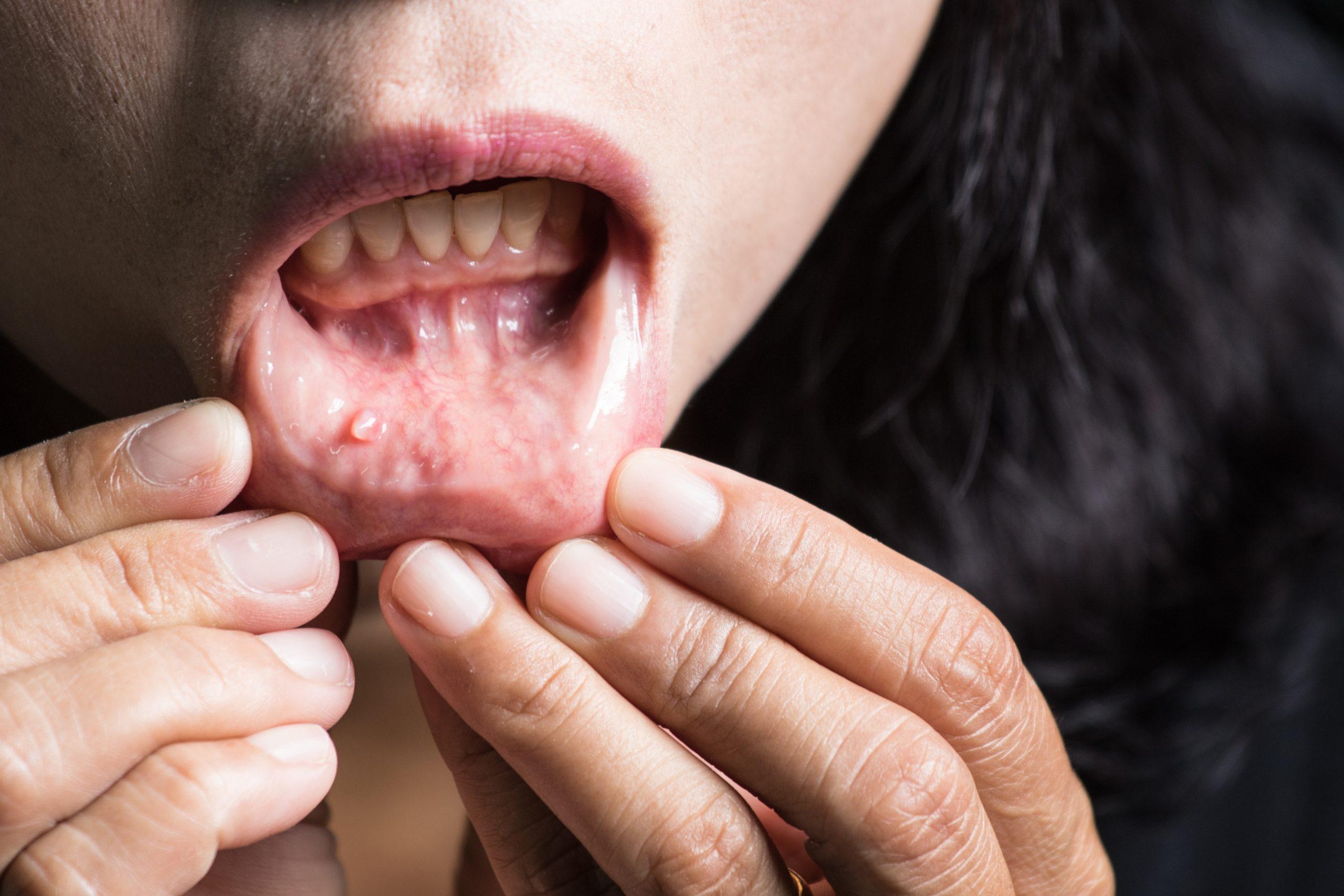 Signs-of-Gum-Disease