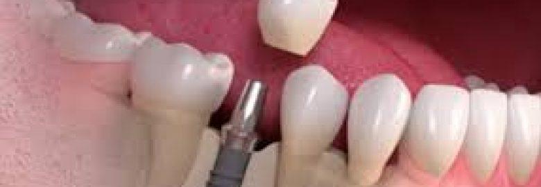Prosmiles Dental Studio