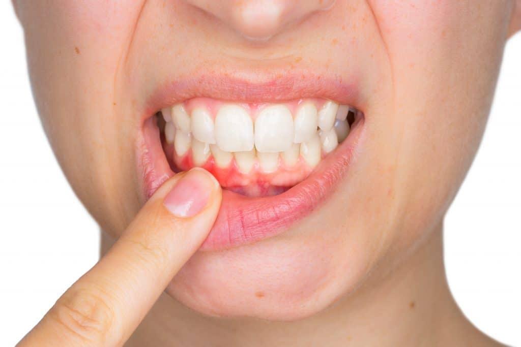 Patient-experiencing-redness-in-gums